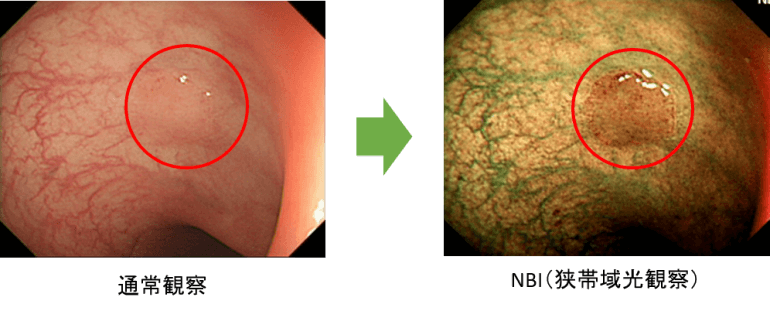 微細な病変を発見できる狭帯域光観察